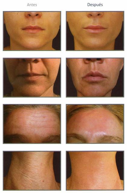 Antes y después de tratamiento con relleno Erelle®