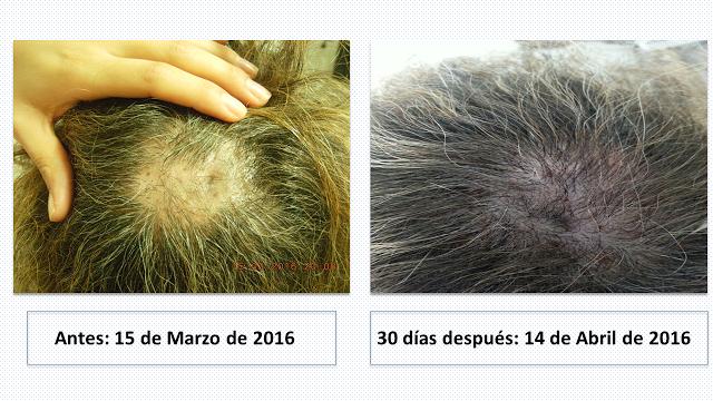 Sistema Regenera en tratamiento de alopecias