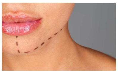 Vídeo de Rejuvenecimiento Facial con Hilos Dual Traction
