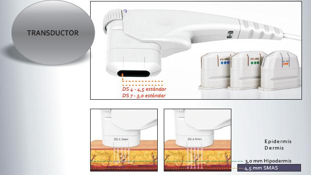 Tratamiento de flacidez facial con el Sistema HIFU.