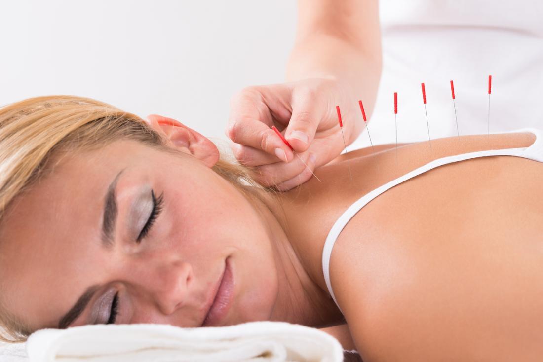La acupuntura es útil en el alivio del dolor
