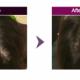 Cómo debemos aplicar el hair filler Dr. CyJ
